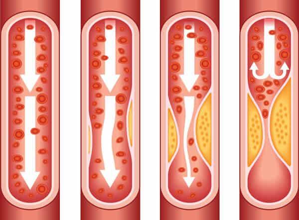 Атеросклероза-холестеролът