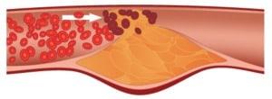 Кои са най-честите увреждания на кръвоносните съдове?