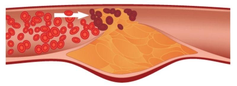 Кои са най-честите увреждания на кръвоносните съдове