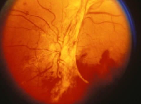 Диабетната ретинопатия