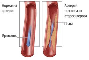 Проучване на Ентан/Entan® при лечение на хронична венозна недостатъчност – разширени вени, Claudicatio intermitens/ хронична артериална недостатъчност