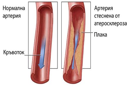 хронична артериална недостатъчност