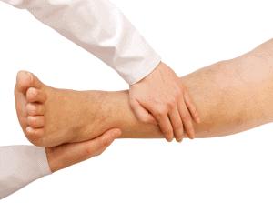 Тромбофлебит – как да се предпазим?