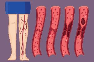 Мезентериална тромбоза – причини, симптоми, защита