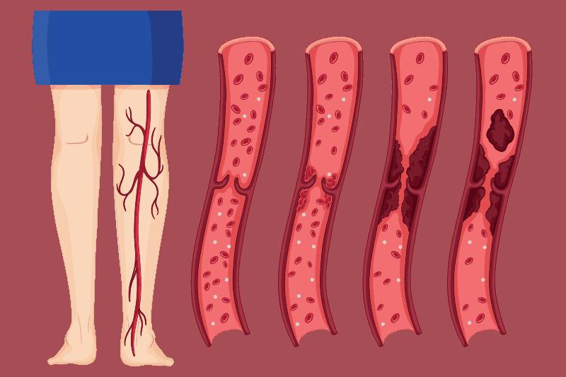 Мезентериална тромбоза