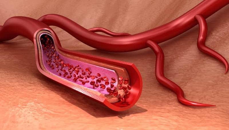 нарушена циркулация на кръвта
