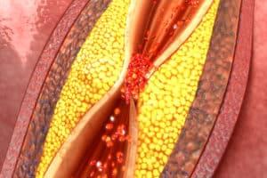 Периферна съдова болест и атеросклероза – какво е общото?