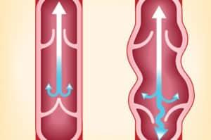 Усложнения при разширени вени – ето как да се избегнат