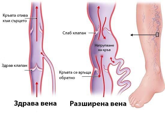 схема на здрави и разширени вени