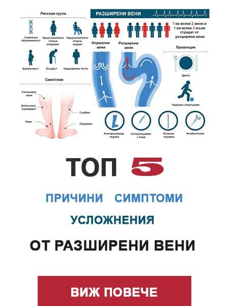 Топ 5 причини, симптоми и усложнения от разширени вени